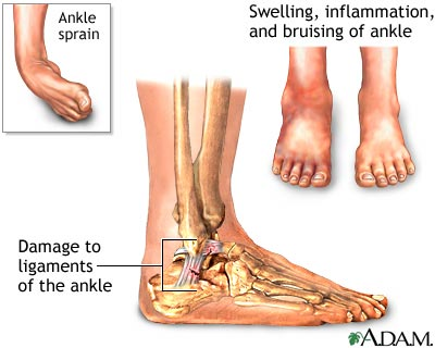 Foot Illustration